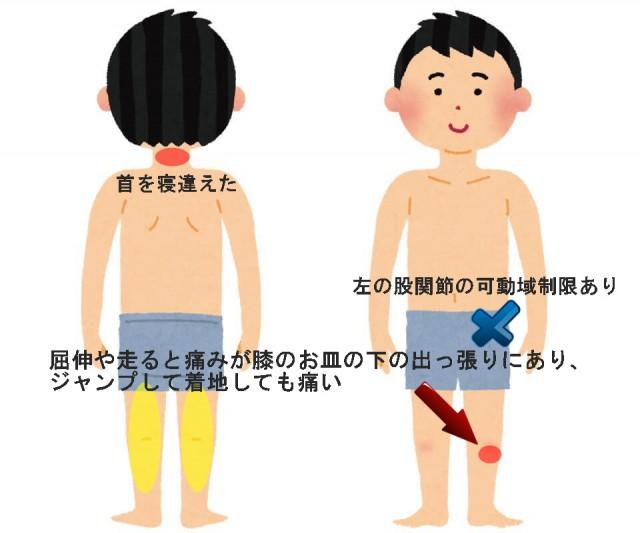 オスグッド症例その1 屈伸や走ると膝の下の出っ張りが痛い
