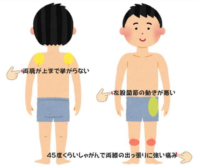 オスグッド病の症例その2画像
